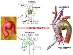 대동맥수술 가이드 - 대동맥 질환의 스텐트 ( Stent graft ) 삽입술 ( TEVAR ) - Hybrid TEVAR (3) Hybrid TEVAR 소개
