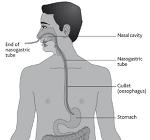 삼킴곤란 : 비위관 Naxogastric Tube, 비구강 식사단계