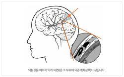 뇌졸중 보험 :: 뇌혈관질환, 뇌경색, 뇌출혈?