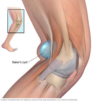 무릎뒤가 아프고 불편하다면? 베이커 낭종을 의심하세요.  (목동 영등포 여의도 양평동 문래동 당산 당산역 선유도역 영등포구청역 정형외과 야간진료 도수치료 통증의학과 재활의학과 박상..