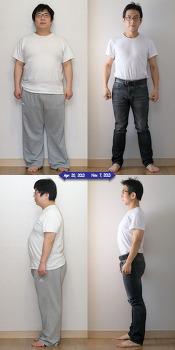 30kg 감량에 성공한 오덕 아저씨(?), 앞으로 어떻게 운동해야할까? (평발, 요족, 외반슬, X다리) (당산역 영등포 양평동 정형외과 통증의학과 박상준의원)
