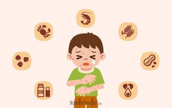 [푸드칼럼] [한영신 교수의 '식품과 알레르기' 시리즈] 알레르기-흙장난-유산균의 연결고리