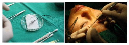 Sewing Needle Technique, 모발이식, 미국 모발이식 전문의 자격증, 속눈썹, 속눈썹 모발이식, 속눈썹 이식, 풍성한 속눈썹