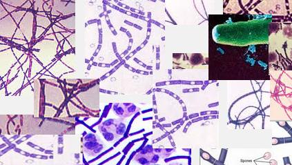 OmnisLog :: 생화학무기-탄저균(炭疽菌-anthrax bacillus)