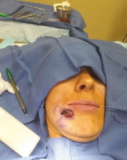 피부암 수술 장면
